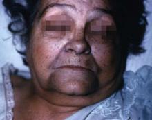 Un caso di pigmentazione blu della pelle, fotografia